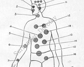 Diagram of Men's Diseases Medical Chart  Human Anatomy 1907 Black & White