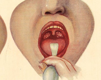 1920s Diphtherea AND Tonsilitis Yucky Medical Illustration. Gag Me With A Spoon.