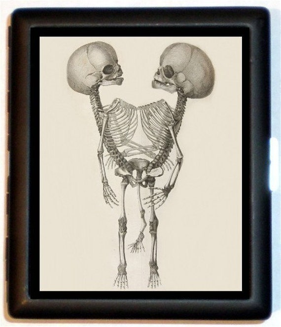 Siamese Twins Conjoined Baby Skeleton Cigarette Case Business Card Case Wallet