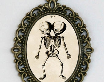 Siamese Twins necklace Skeleton Victorian Medical Drawing anatomy psychobilly gothic punk odd