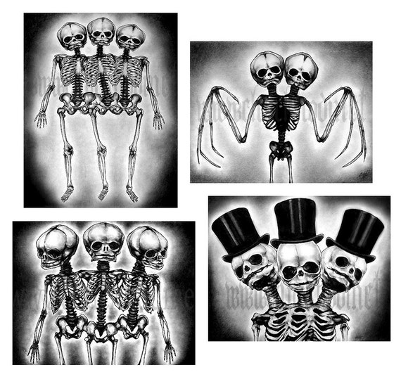 """Prints 8x10""""  - Skeletons - Conjoined Twins Bones Skulls Macabre Spooky Halloween Taxidermy Gothic Victorian Haunted Dead Grave Horror"""