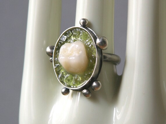 Portrait Of A Tooth Ring