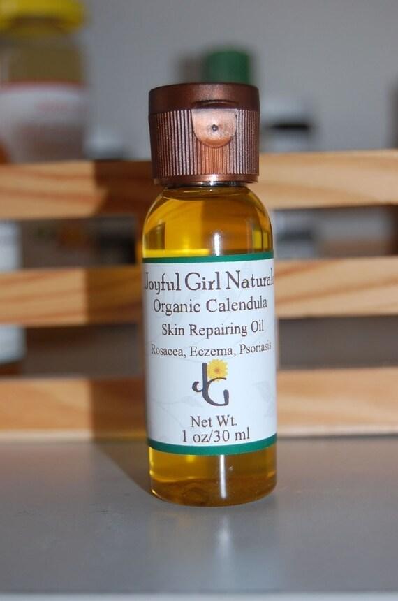 Healing Calendula Oil Rosacea, Psoriasis,