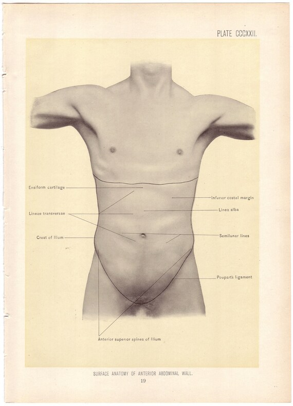 1899 Antique SURFACE of ABDOMINAL WALL Surgical Anatomy Illustration