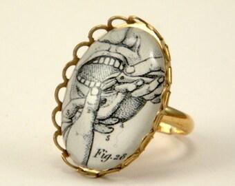 Petite Pulling Teeth Vintage Dental Engraving Ring Medical Halloween Wear
