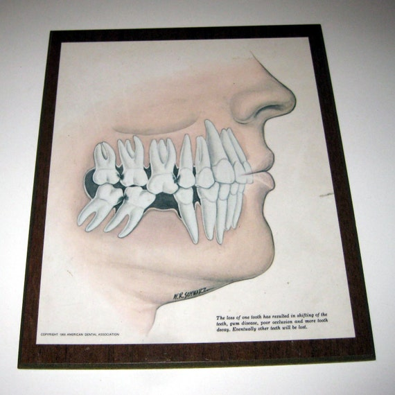 Wall Art For Dental Office : Reserved for mnbrie vintage s dental office wall decor