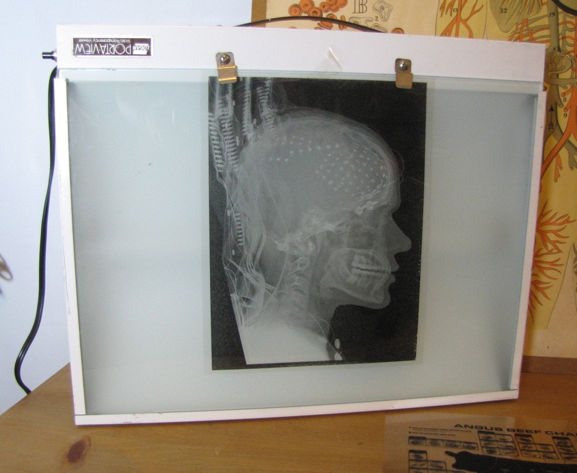 Vintage X Ray Transparency Or Slide Light Box Wall Or Table
