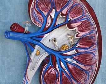 Kidney Stones Print