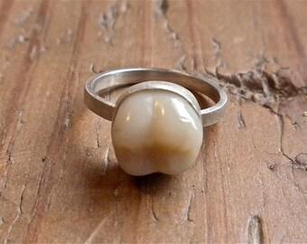 Molar Ring