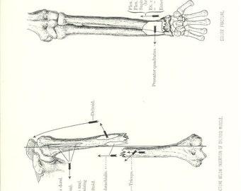 1926 Human Anatomy Print - Broken Arm - Vintage Antique Medical Anatomy Art Illustration for Doctor Hospital Office