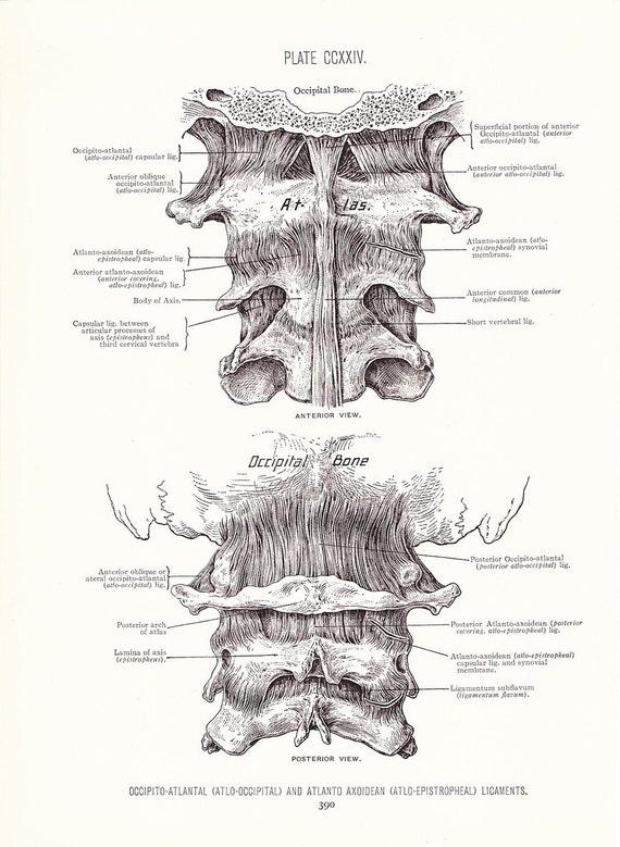 1926 Human Anatomy Print - Vertebra Ligaments - Vintage Antique Medical Anatomy Art Illustration for Doctor Hospital Office