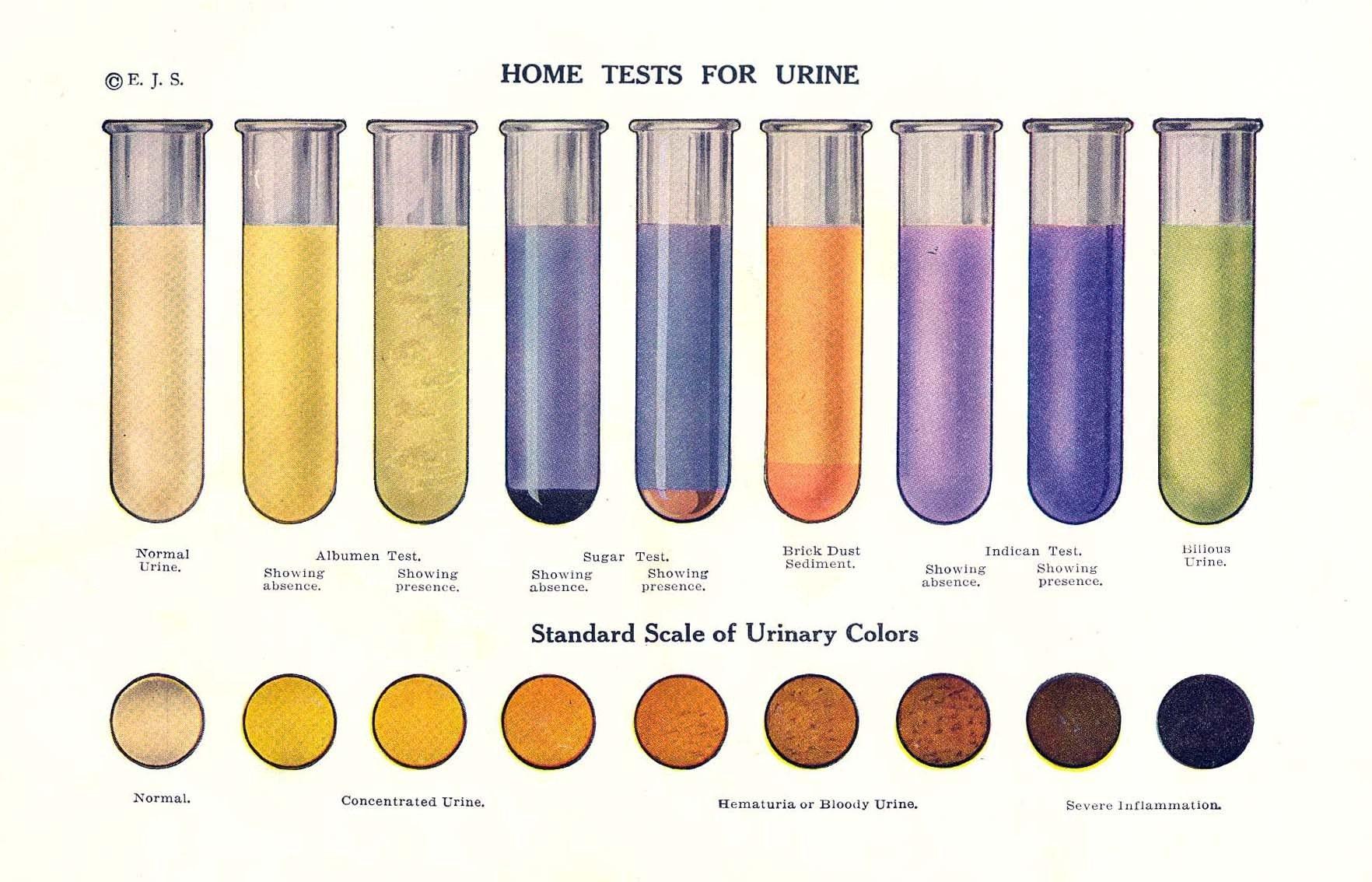 Vintage Home Tests For Urine Color Print