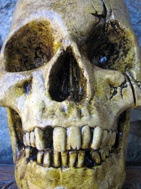 Half Aged Human Skull - With Lower Mandible and Battle Damage - Natural