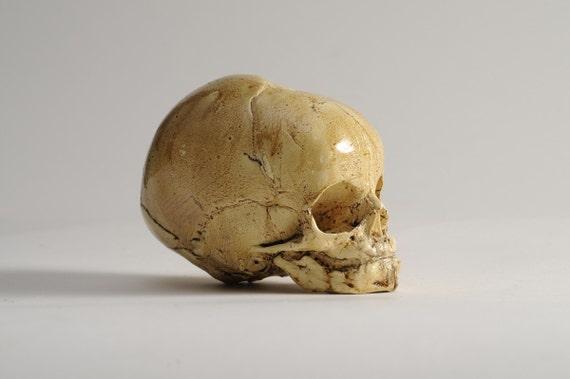 Fetus Skull Reproduction
