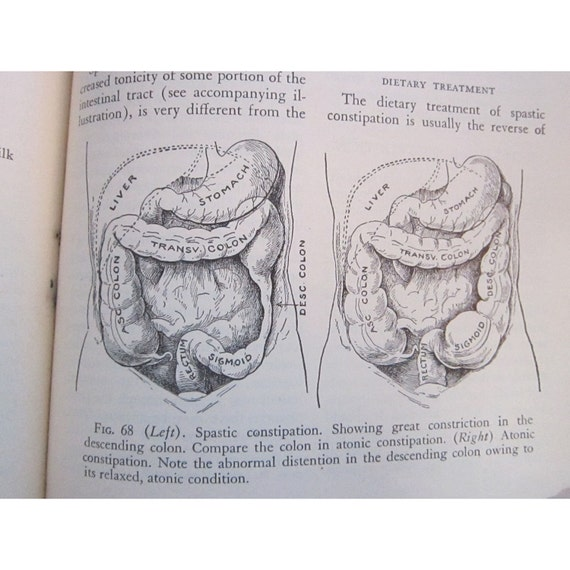 antique book - NUTRITION in Health and Disease - circa 1947 - medical, anatomy - some color plates