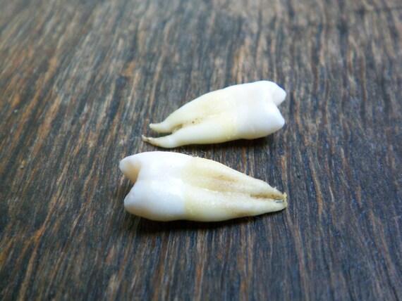 a pair of human teeth
