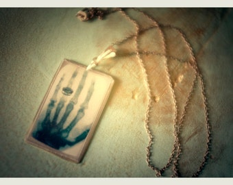 Mrs. Röntgen's hand X-Ray Pendant
