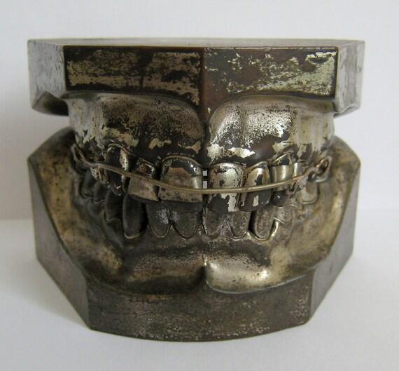 Unusual Early Columbia Dento Form Ligature Braces Teeth  Metal Cast