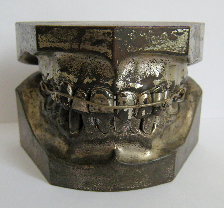 unusual early columbia dento form ligature braces teeth metal