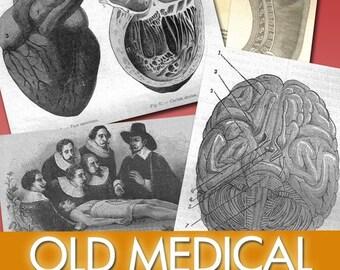 Digital images Old Medical Illustration anatomical label disease study plates doctor medicines vintage heart brain organs operations / C127