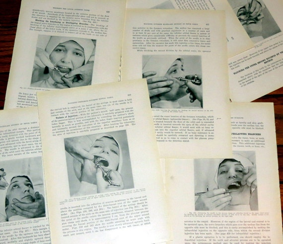 Antique Medical / Dental - Huge Lot of Unusual 90 Year old Book Plates - Facial Injections / Skulls / Cadaver Heads- Frame Worthy - Art Deco