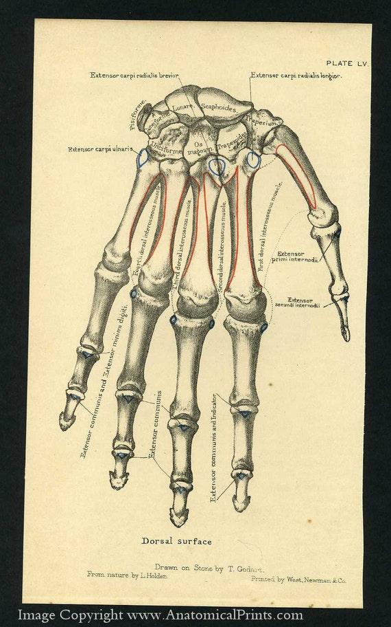 1887 Human Anatomy Prints of the Hand and Wrist Bones