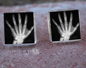 Glass Tile Post Earrings-Human Hand X Ray Skeleton Creepy Weird Medical