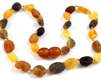Baltic Amber Baby Teething Necklace Olive Form Beads