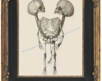 Victorian Medical Image of Siamese Twins Art Print 8 x 10  Version Two