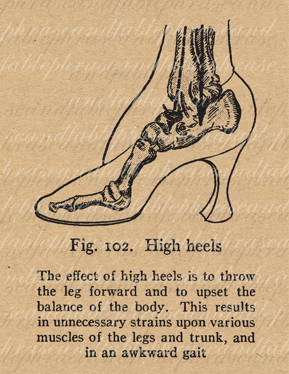 The Effect Of High Heels Shoes Vintage Digital Image Download Feminism Medical 004