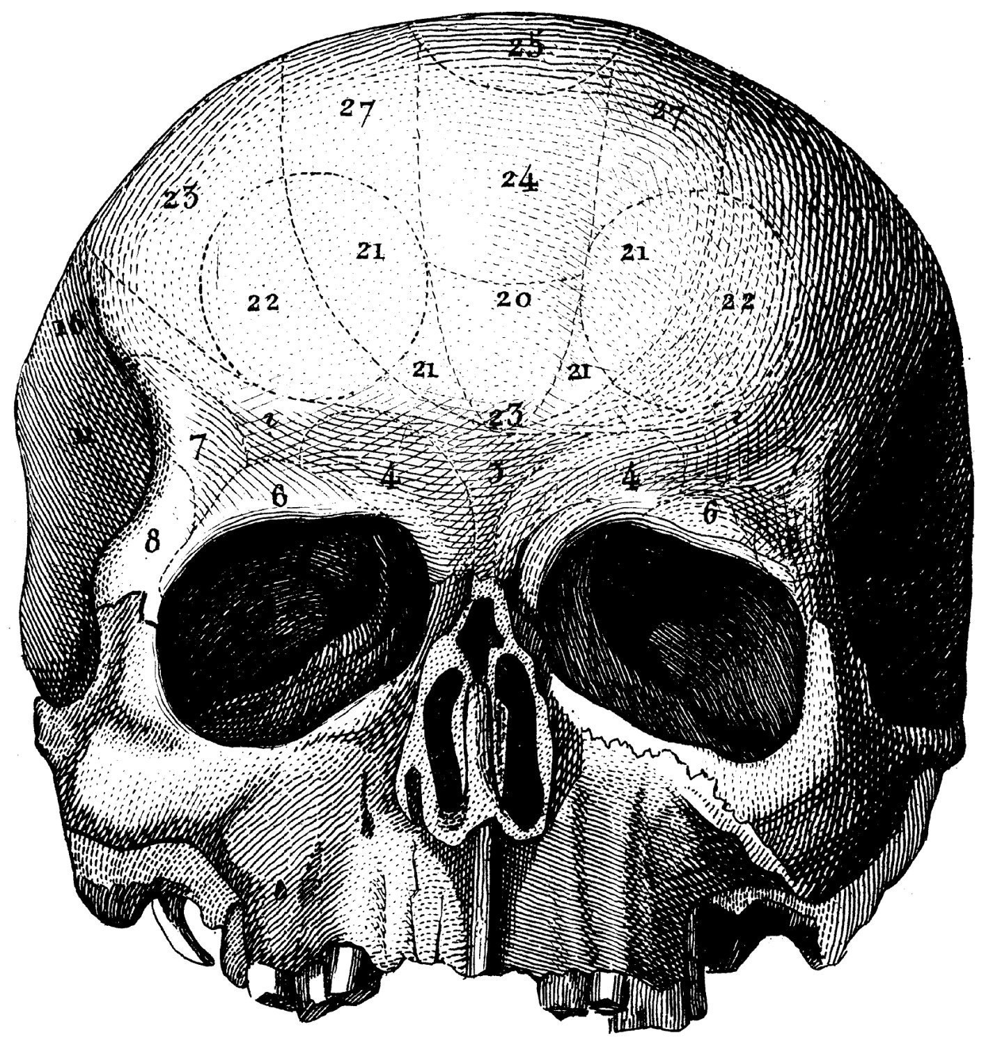 Items similar to The human skull, Old medical atlas ...