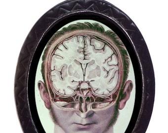 Anatomy Victorian Medical Brain Splice Necklace Pendant