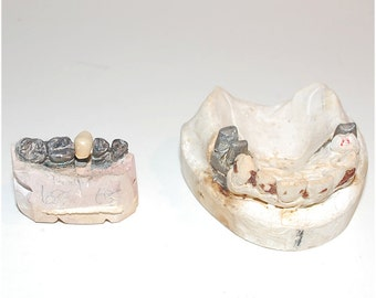 Gunmetal and plaster Vintage Dental pieces - teeth, crowns, plaster molds