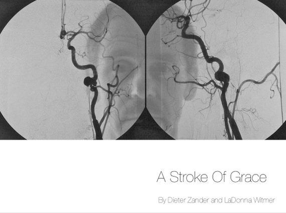 A Stroke Of Grace