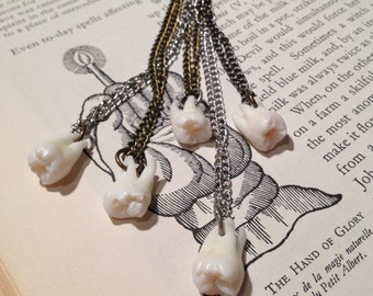 YOUR SUPPLIED TOOTH Made Into A Pendant Necklace