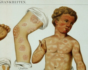 1894 Antique DERMATOLOGY print. Human Skin and its diseases. Medicine. 122 years old anatomical lithograph.