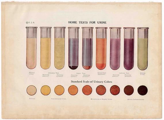 1912 urine analysis original antique medical science print - urinalysis