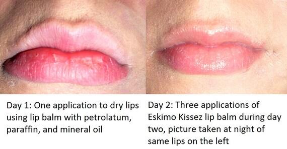 Thieves Oil Lip Balm - Organic - Kills Germs - Antibacterial Lip Balm - Buy 4 Get 1 FREE