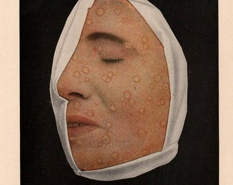 1908  Edwardian Smallpox Illustration Do You Dare to Look Medical Ephemera