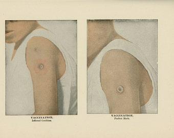 1906 VACCINATION MARKS human anatomy original antique disease print