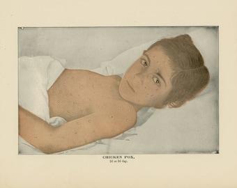 1906 chicken pox human anatomy original antique skin disease print