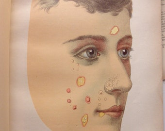 original page - 1905 color MEDICAL CHART from antique medical book - syphilis, male, venereal