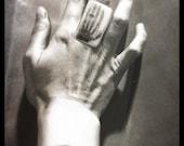 Mrs. Röntgen's hand X-Ray Ring