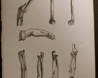 original page - 1916 MEDICAL CHART from antique medical book - broken bones
