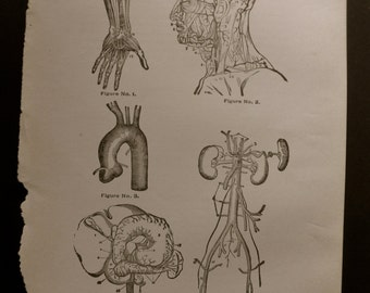 1916 MEDICAL CHART from antique medical book - The Arteries