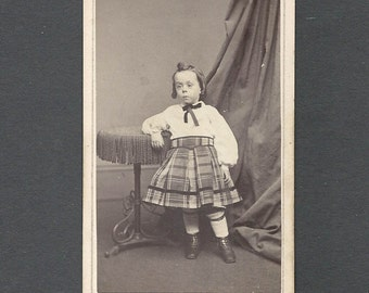 Fredricks CDV of a Beautifully Dressed Child ~ Possible Downs Syndrome