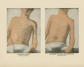 1906 SCARLET FEVER LITHOGRAPH scarletina human anatomy original antique skin disease illness print