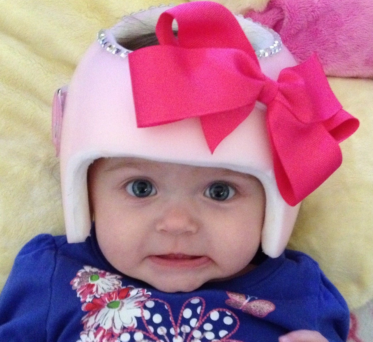 tons of colors plagiocephaly helmet bows see listing photos