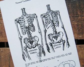 Reproduction of Vintage Skeletons Print - Anatomy, Human, Science, Health