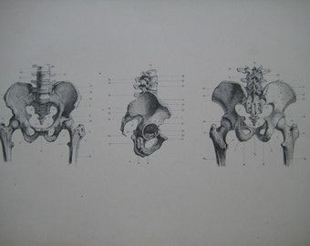 Large 1886 Antique Medical Engraving of the Hip and Plevis Bones